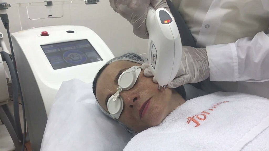 medical grade lasers for laser hair rmoval Draperstown - SKiN Aesthetic Clinic