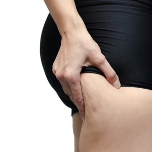 Cellulite treatment and Radio Frequency skin treatment available at SKin NI - Northern Ireland
