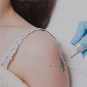laser hair tattoo removal - Northern Ireland